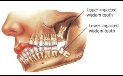 Impacted/Wisdom Teeth